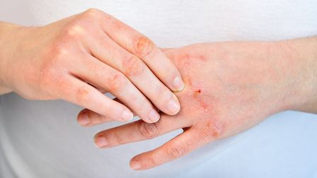 Dry hands are a common winter skincare complaint. This has been worsened throughout the pandemic due to frequent hand...