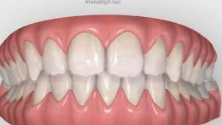 Reporter Ben Jolley is beginning his teeth transformation journey with Invisalign treatment by Dr Kishan Patel at March...