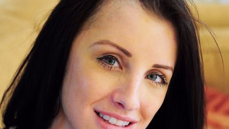 Norwich Brain Tumour Support Group. Norwich model Kerri Parker who has just had her operation.Photo