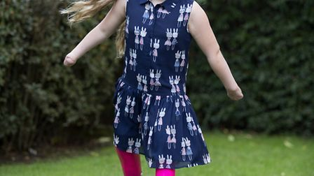 Grace Matthews walks un-aided wearing her new blades for the first time.