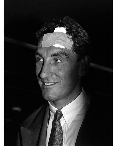 Terry Butcher with his bandaged head at Heathrow Airport after he sustained the injury during the En