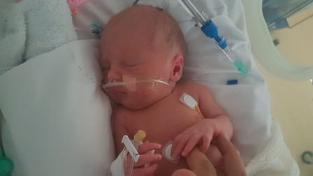 Evie Howard after she was born five weeks premature in June 2019.