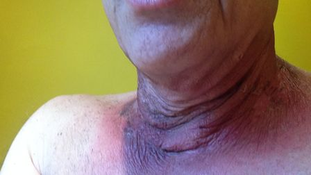 Disfigurement after Steve's operation for throat cancer