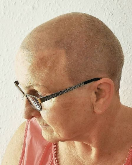 One of Darren's clients was a woman in her 70s living with alopecia