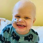 Harry Crick, 2, is undergoing treatment for a rare form of cancer