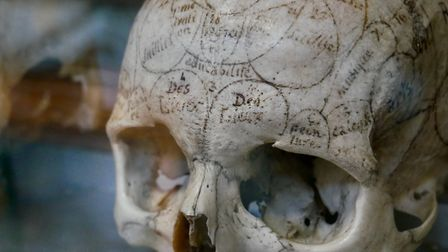 The many exhibits include anatomical parts and wax models. Pic: Stephen Turnbull