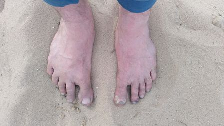 Matt Willer walked the 46 mile Peddars Way barefoot to raise awareness of the need for people to tread to carefully