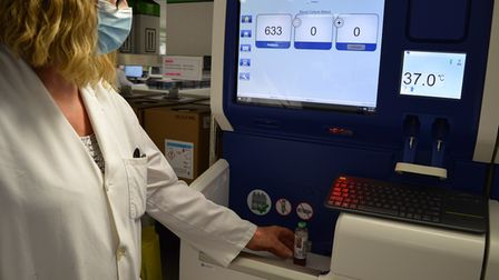 Sepsis will be diagnosed faster following the roll out of technology at Norfolk's three hospitals.