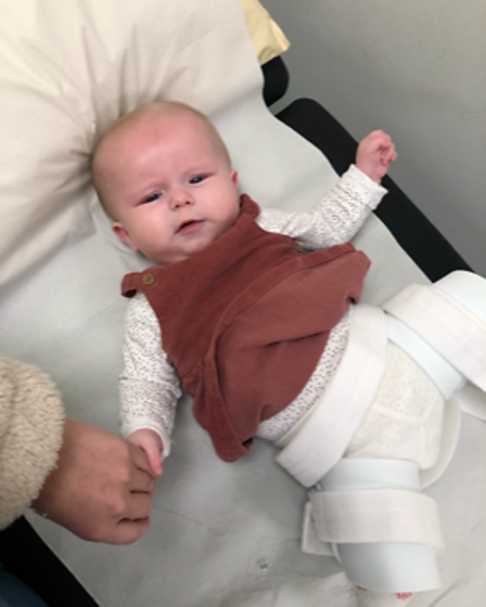 Posie had surgery just after her first birthday and also had to wear a hip brace at six months old.