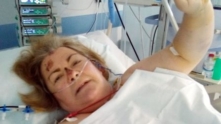 Tina Ann Buckle is stuck in Portugal after suffering serious injuries as a result of a fall