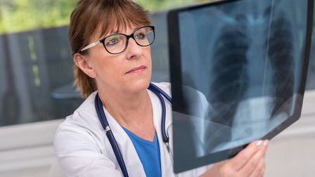 In France you may need to pay upfront for X-rays and be reimbursed later (photo: Getty/thodonal)