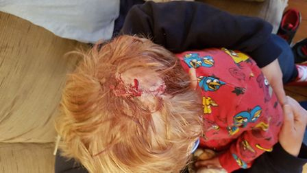 Max Hannant, 3, in hospital after suffering a bad cut to his head.