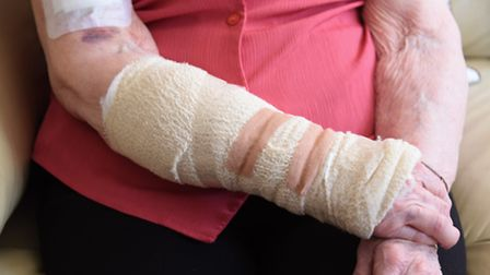 The wounded arm of Pearl Capes, 93, after a cat attacked her. Picture: DENISE BRADLEY