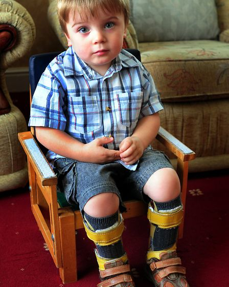 Blake Barley in the splints he has to wear day and night. The three-year-old has cerebral palsy, and