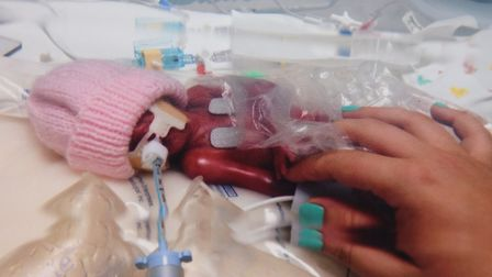 Lola Palmer who battled for life for 12 hours after being born prematurely. Picture: Sammie Palmer