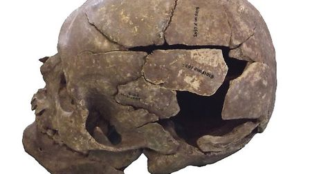 One of the victims' skulls found at Sedgeford, showing the result of a blow from a weapon he receive
