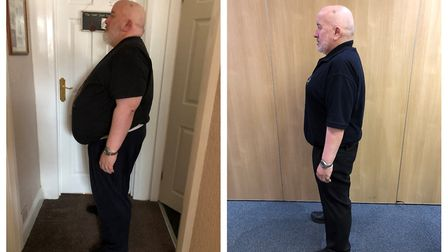 (L-R): Stuart Hall weighing 22st, after his 7st weightloss to 15st. Photo: Stuart Hall