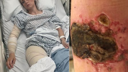 North Walsham mum Liana Stott in hospital after the skin graft operation she needed after a burn to
