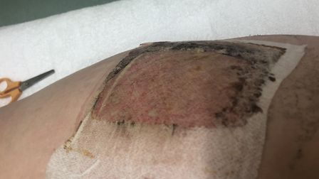 The burn suffered by North Walsham mum Liana Stott after using Ovenpride. Picture: Supplied by Liana