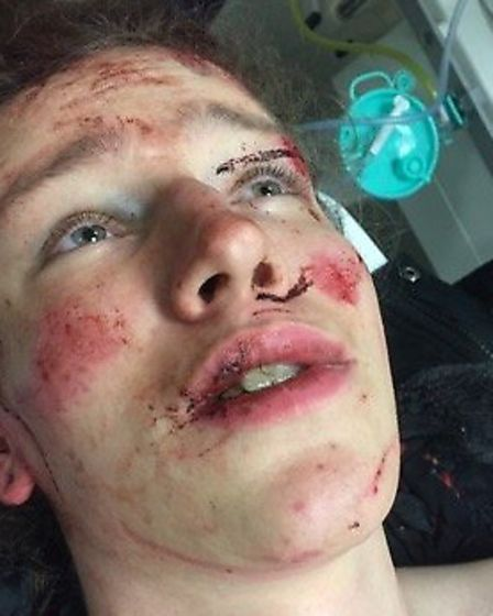 Cyclist Harry Rivett, 21, at A&E in Norwich after his accident. Picture: Lorraine Rivett
