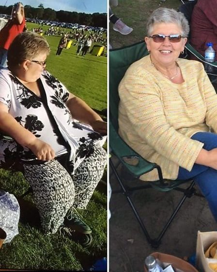 Sheringham charity shop worker Cindy Farrow before and after her amazing eight-and-a-half stone weig