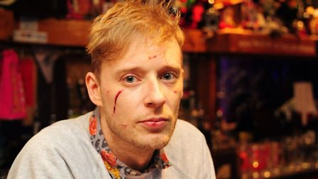 Kings landlord Jesse Charlebois was assaulted by a gang of men who came into his Norwich pub.PHOTO B
