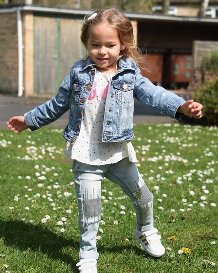Three-year-old Victoria Komada who was born with deformed legs and bones missing, now walking after