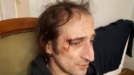 Tommy Georgiou was attacked in Watton, at Church Walk, in an attempt to steal his dog Norman, an Eng