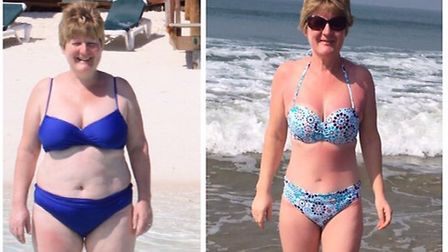 Sue Kelly before and after