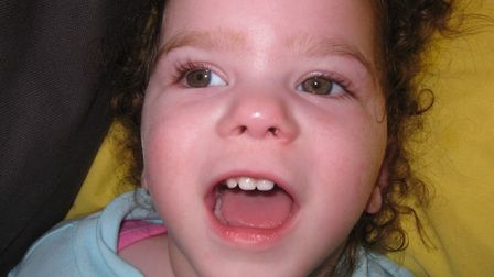 Skyla Creamer, who arrived eight weeks early and battled against numerous medical condition, has die