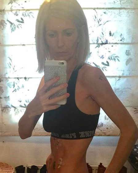 Becky Evans, who has shared her personal battle with anorexia on Instagram Picture: BECKY EVANS