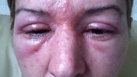 Jane Rolfe suffered an allergic reaction after havign eyelash extensions