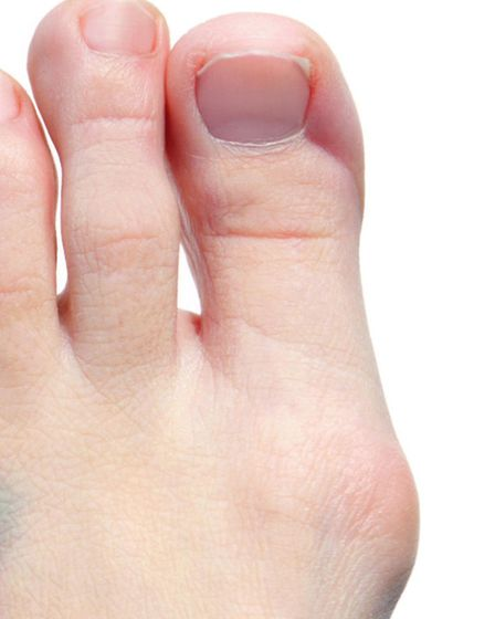 Wearing good shoes can stop bunions forming. Picture: PA Photo/thinkstockphotos.