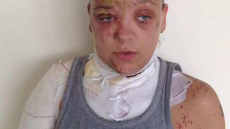 Police have released an image of Tara, who had acid thrown in her face