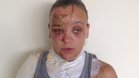 Tara Quigley will have to undergo more skin grafts following the acid attack