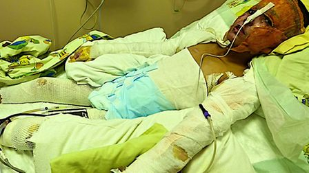 A young burns victim in the hospital in Syria. Courtesy of Panorama