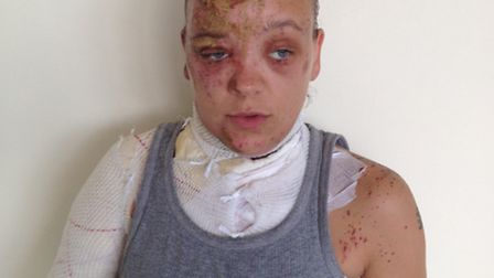 Tara Quigley had acid thrown in her face in April.
