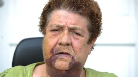 Patricia Beckford, 75, was attacked on Friday. Photo: David Mirzoeff