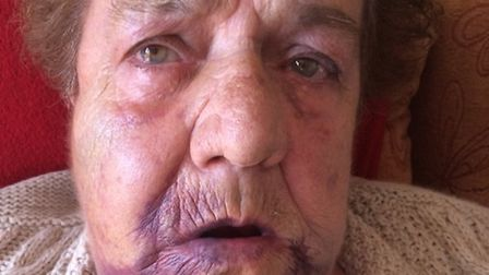 Patricia Beckford,75, was left with two breaks in her jaw and substantial bruising after the vicious