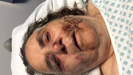 Zallu Hassan, 83, who suffers from Alzheimer�s was left with horrific injuries from the attack.