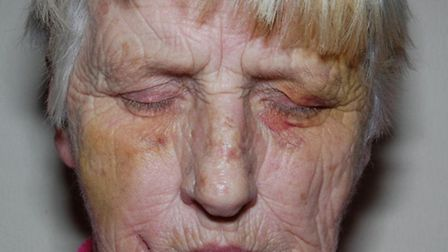 Police are appealing for witnesses to a robbery which left a 68-year-old woman bruised.