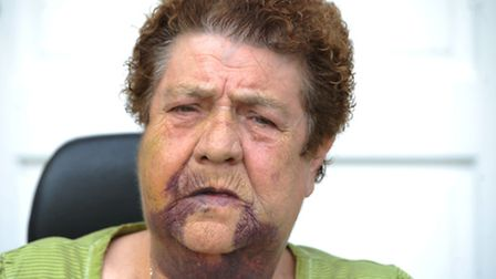Patricia Beckford, 76, was attacked on Friday. Photo: David Mirzoeff