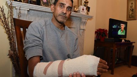 Nirmal (Nim) Kalsi was attacked by a dog. He had to have a metal plate in his arm and has surgery to