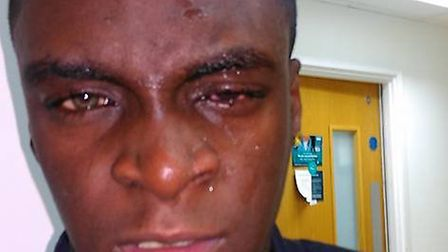 Sam Boateng pictured after the attack in Rainham on Wednesday night
