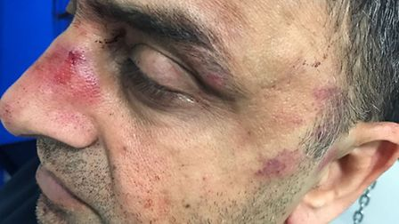 Pakistani diplomat Zubair Gull after he was beaten with a metal pole. He believes the attack was pol