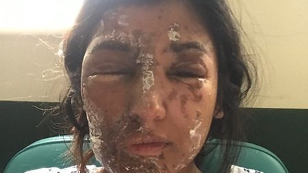 Resham has suffered burns on her face and body whilst her cousin's condition is even worse. PICTURE: