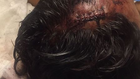The victim required stitches in his head