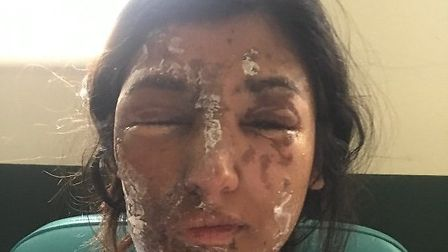 Resham Khan had acid thrown on her and her cousin. PICTURE: Resham Khan/GoFundMe