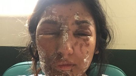 Resham Khan had acid thrown on her and her cousin earlier this year. PICTURE: Resham Khan/GoFundMe