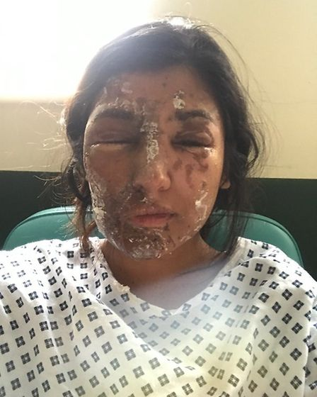 Resham Khan suffered horrific burns to her face during an acid attack in east London. PICTURE: Resha